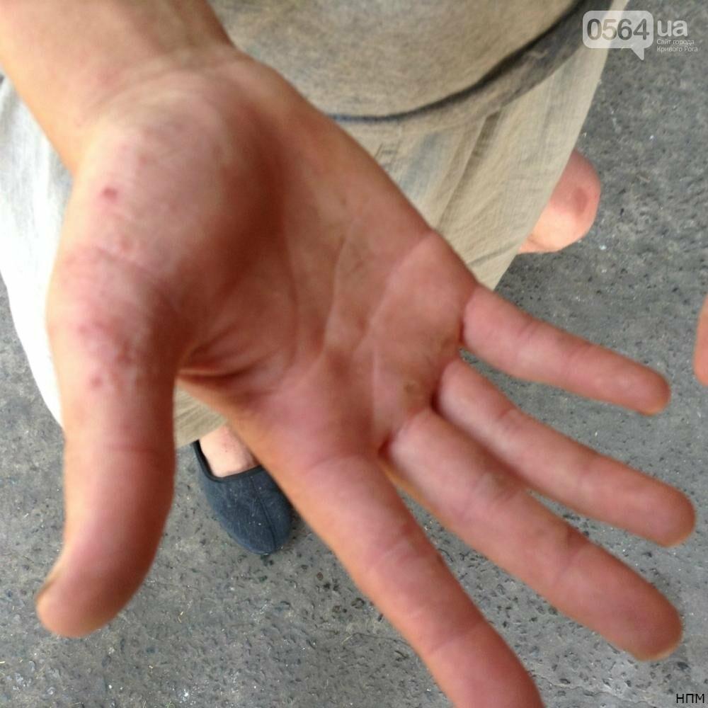 В Криворожском психдиспансере больные работают на директора и моются все одним мылом (ФОТО 18+), фото-2