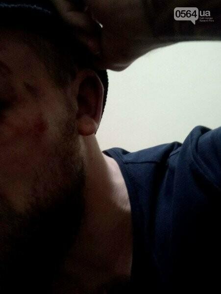 """""""Били втроем ногами по голове"""": в Кривом Роге напали на помощника депутата (ФОТО 18+), фото-3"""
