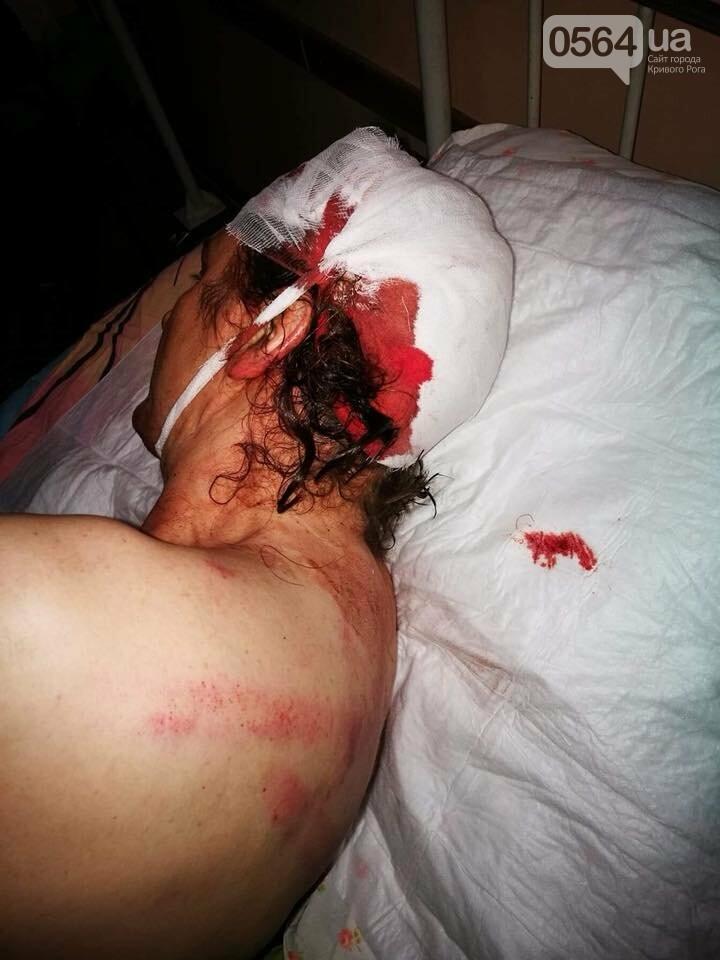 """""""Били сзади тяжелым предметом, а потом ногами"""": криворожский активист после жестокого избиения находится в больнице  (ФОТО 18+), фото-3"""