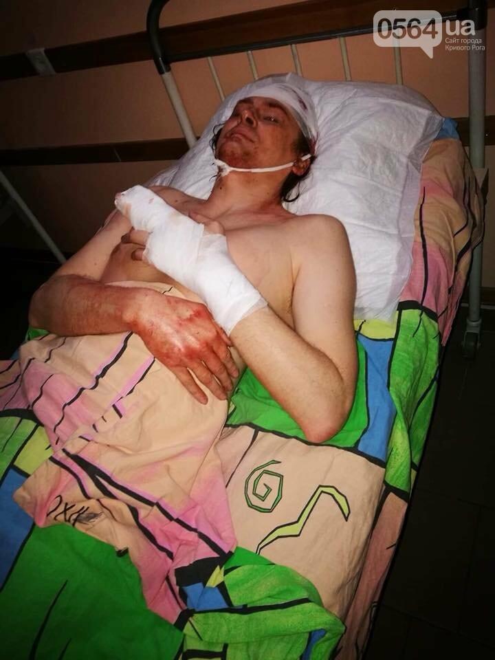 """""""Били сзади тяжелым предметом, а потом ногами"""": криворожский активист после жестокого избиения находится в больнице  (ФОТО 18+), фото-4"""