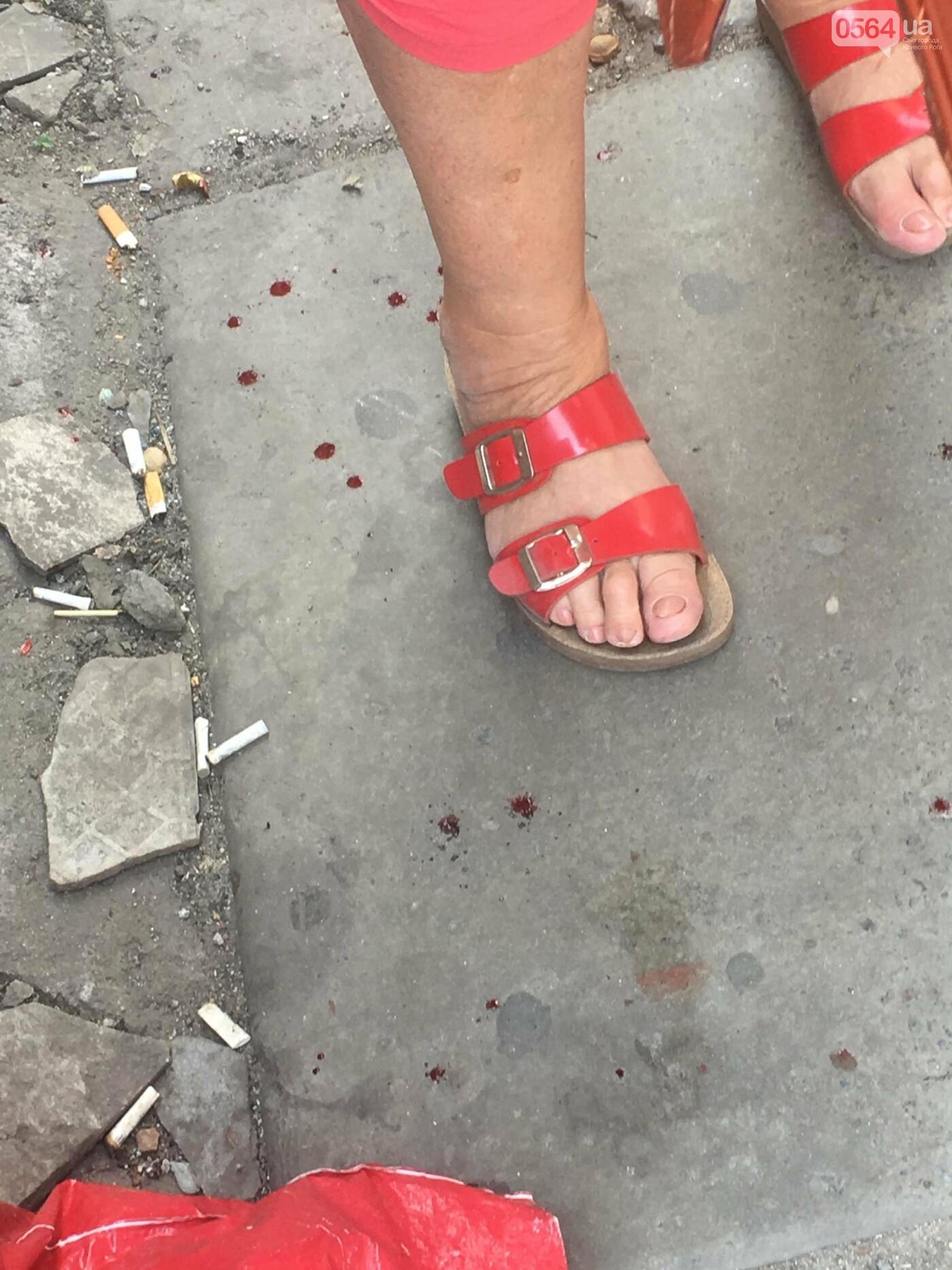 """Проходя по """"дороге"""" к рынку, 75-летняя криворожанка травмировалась, - ФОТО, фото-14"""