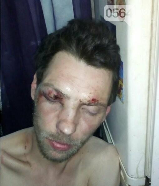 В центре Кривого Рога рано утром жестоко избили парня, - ФОТО 18+, фото-1