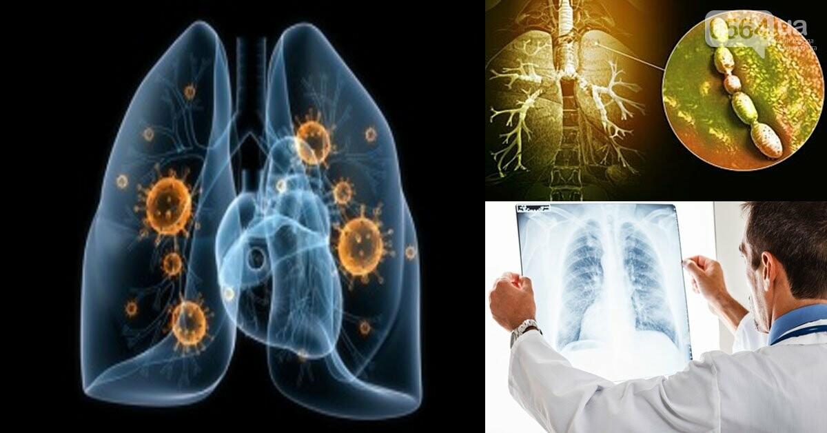 За сутки в Кривом Роге госпитализировали 22 горожан с пневмонией , фото-1