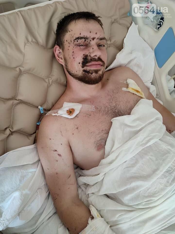 При выполнении боевой задачи на Донбассе ранен криворожанин Борис Басс. Нужна помощь в лечении, - ФОТО, фото-3