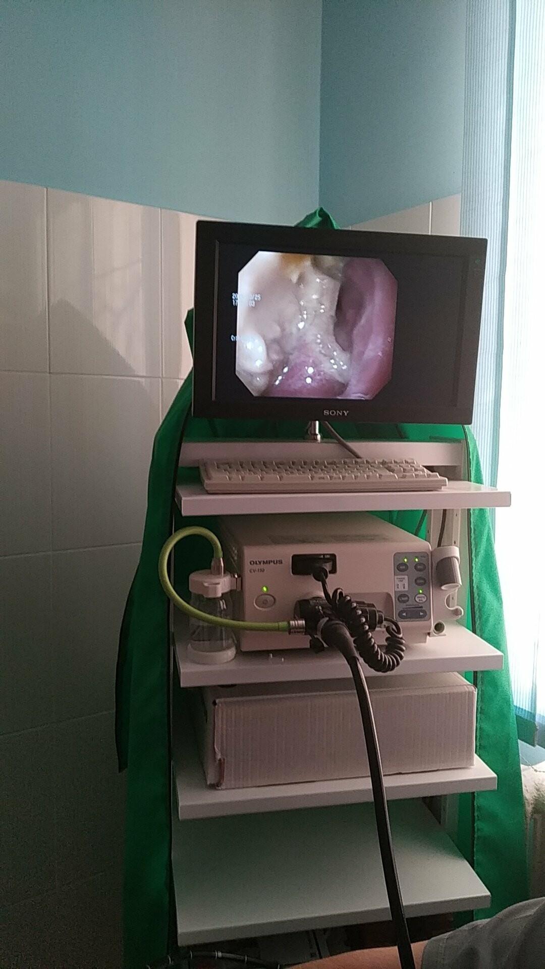 Гастроскопия, фото-4