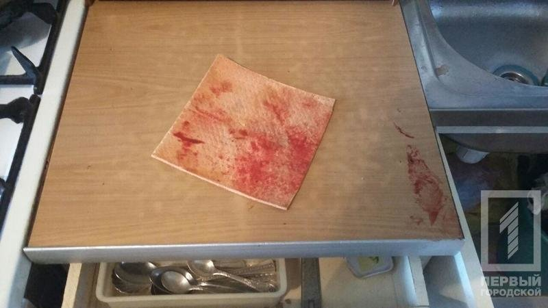 Криворожанка пыталась зарезать свекровь кухонным ножом (ФОТО 18+), фото-1