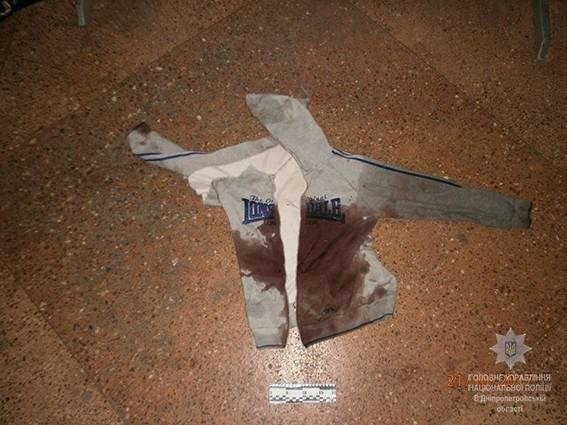В Днепре мужчина воткнул в сердце друга нож и оставил истекать кровью (ФОТО 18+), фото-2