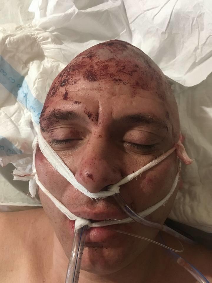 В Кривом Роге нашли мужчину с травмой головы и ищут его родственников (ФОТО 18+), фото-6