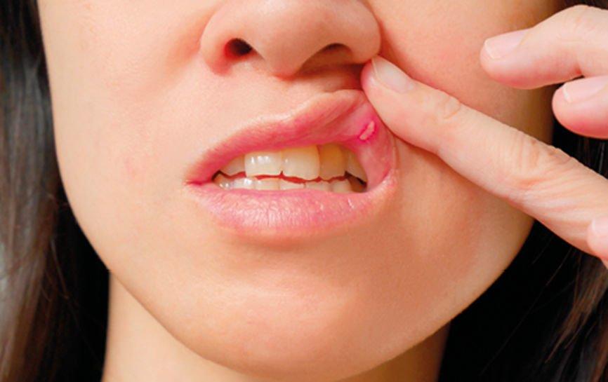 Что такое стоматит и опасно ли это?, фото-1