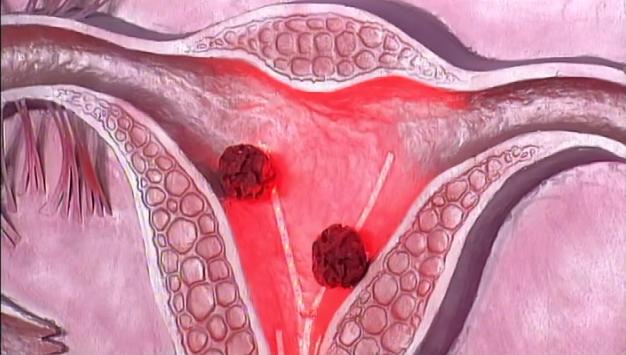 Современные способы лечения рака матки, яичников, шейки матки в медицинском центре им. Рабина в 2018 году, фото-1